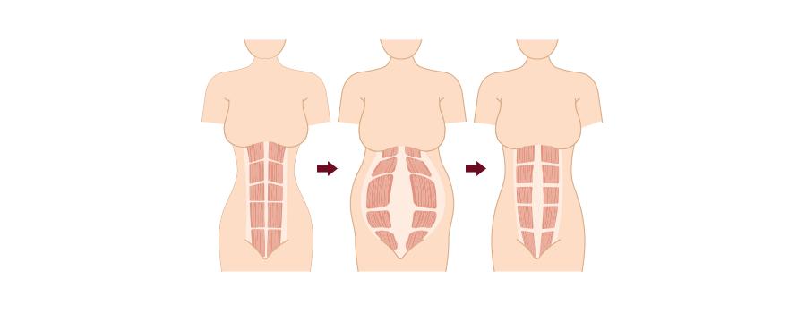 ab workout pregnancy